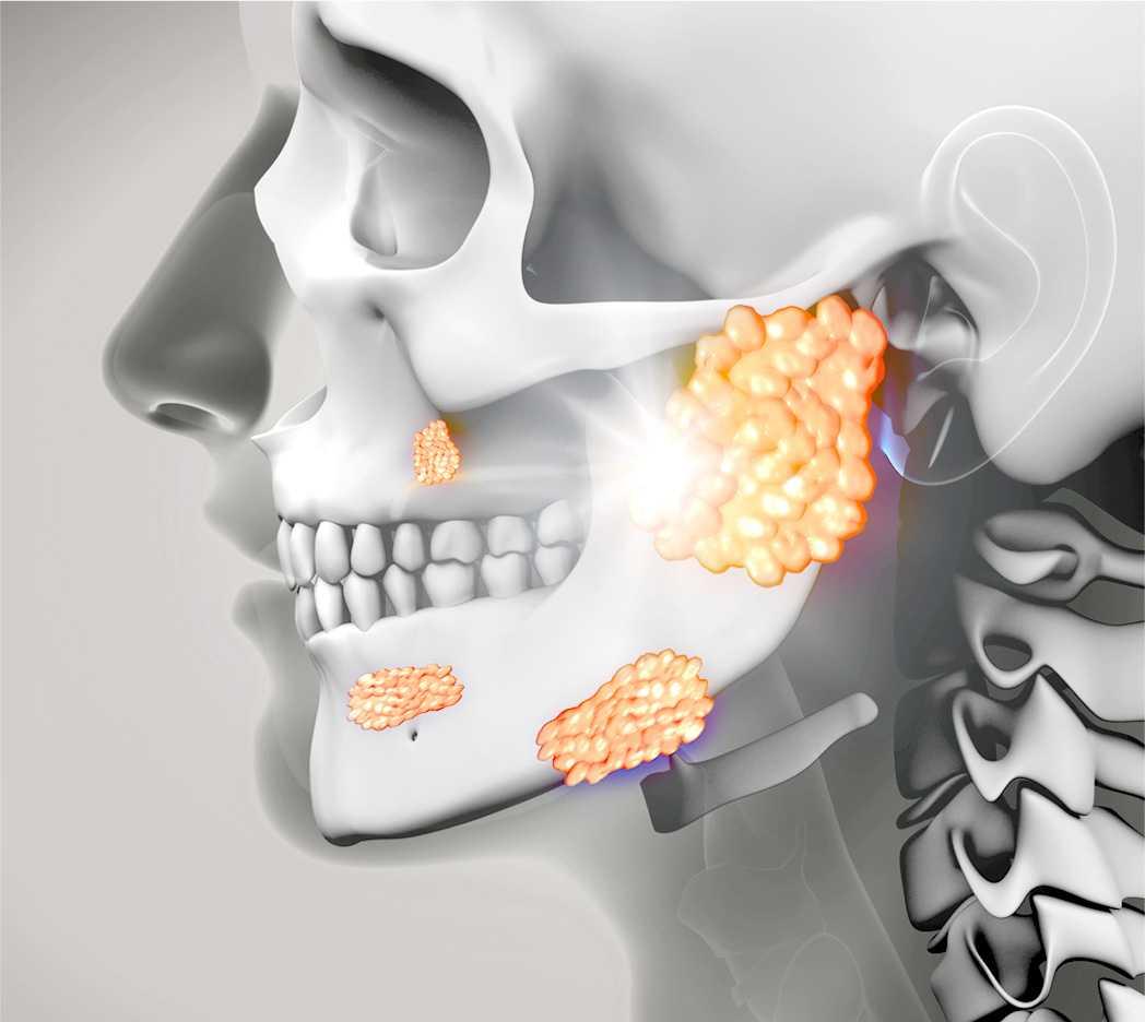 knochen-teeth-img