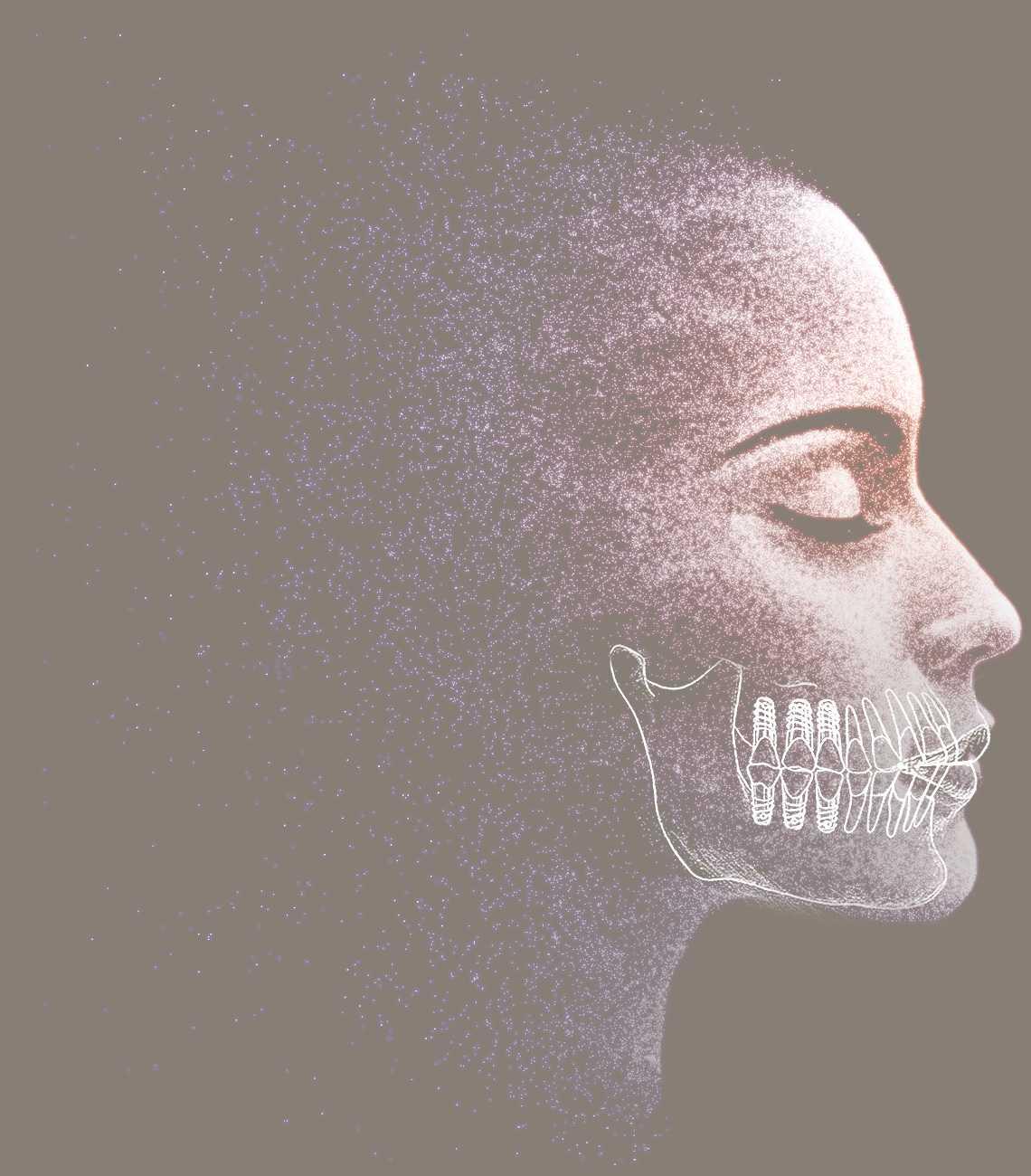 Frau im Profil mit illustrierten Zahnimplantaten aus M2 in Leipzig